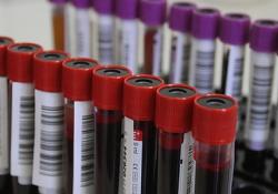 Kevés a vér a tartós hideg és a megfázásos megbetegedések miatt